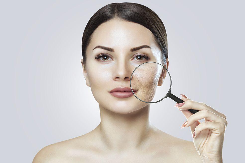 Cómo eliminar las manchas del acné en el rostro
