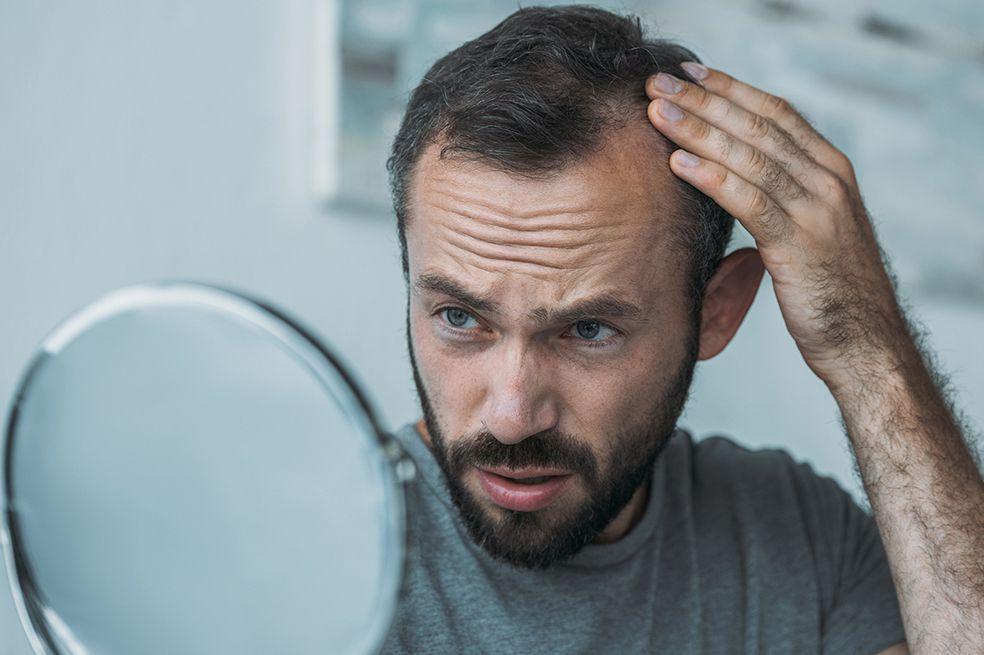 Alopecia en hombres y mujeres